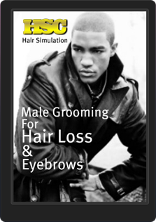 The Hair Simulation Company| Bald Spots on African American Men and Women